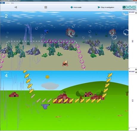 Компьютерная анимационная биофидбэк терапия по давлению и ЭМГ